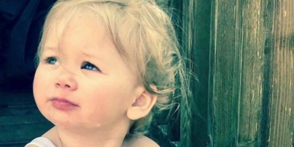 Bebé con extraña condición: es alérgica al agua