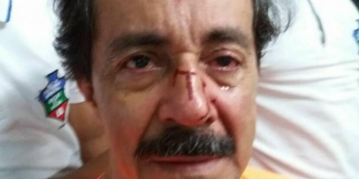 Profesor fue brutalmente agredido por padre de estudiante que reprobó el año