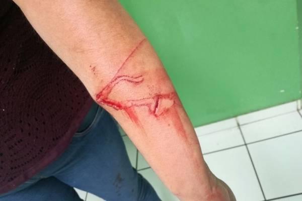 Niño de 10 años ataca con su cuchillo a su maestra en una escuela de Tonalá