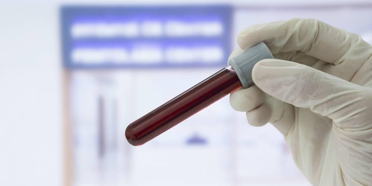 El nuevo dispositivo que permitiría detectar hasta 13 tipos de cáncer sólo con una gota de sangre