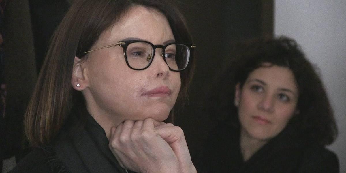 La candidata Italiana símbolo de la violencia machista luego de que su ex le desfigurara la cara con ácido