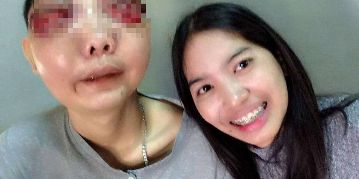 Se quedó con su novio a pesar de que este tiene un tumor que deformó su cara