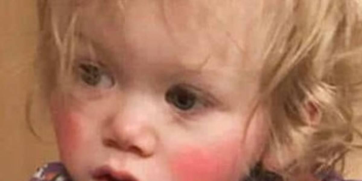 El extraño caso de la niña cuyas lágrimas le provocan quemaduras de tercer grado