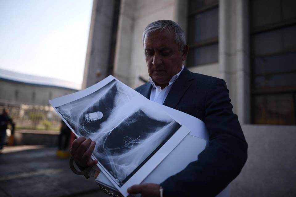"""Otto Pérez Molina muestra radiografías y habla de su salud. Es vinculado al caso """"La Línea"""". Edwin Bercián"""
