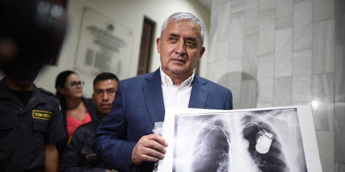 Así funciona el cardiodesfibrilador que usa Otto Pérez Molina