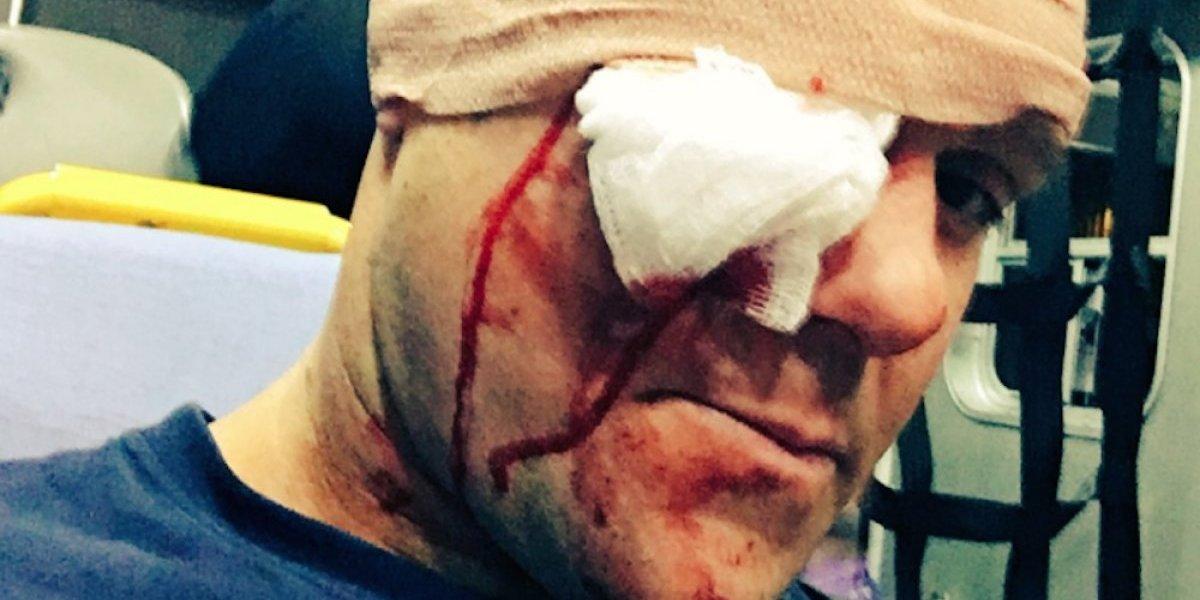 ¡GOLPAZO! Luchador impacta a su rival en el rostro con un bat