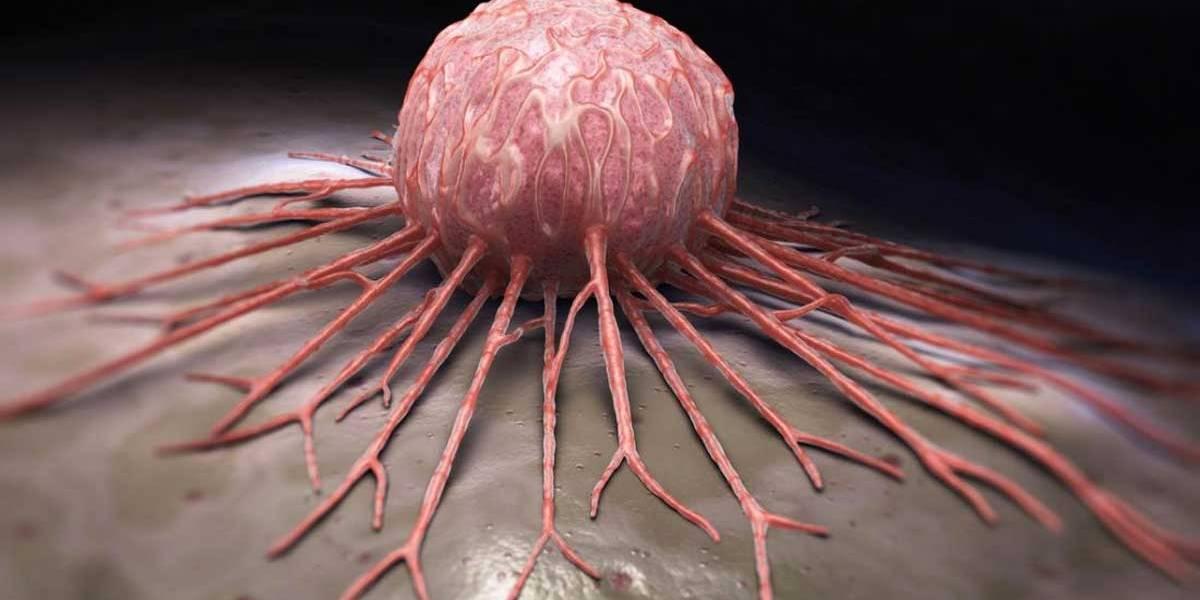Cientistas descobrem proteína que potencializa tumores