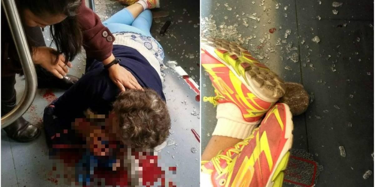 VIDEO: Lanzan piedra a Metro y lesionan a mujer de 70 años