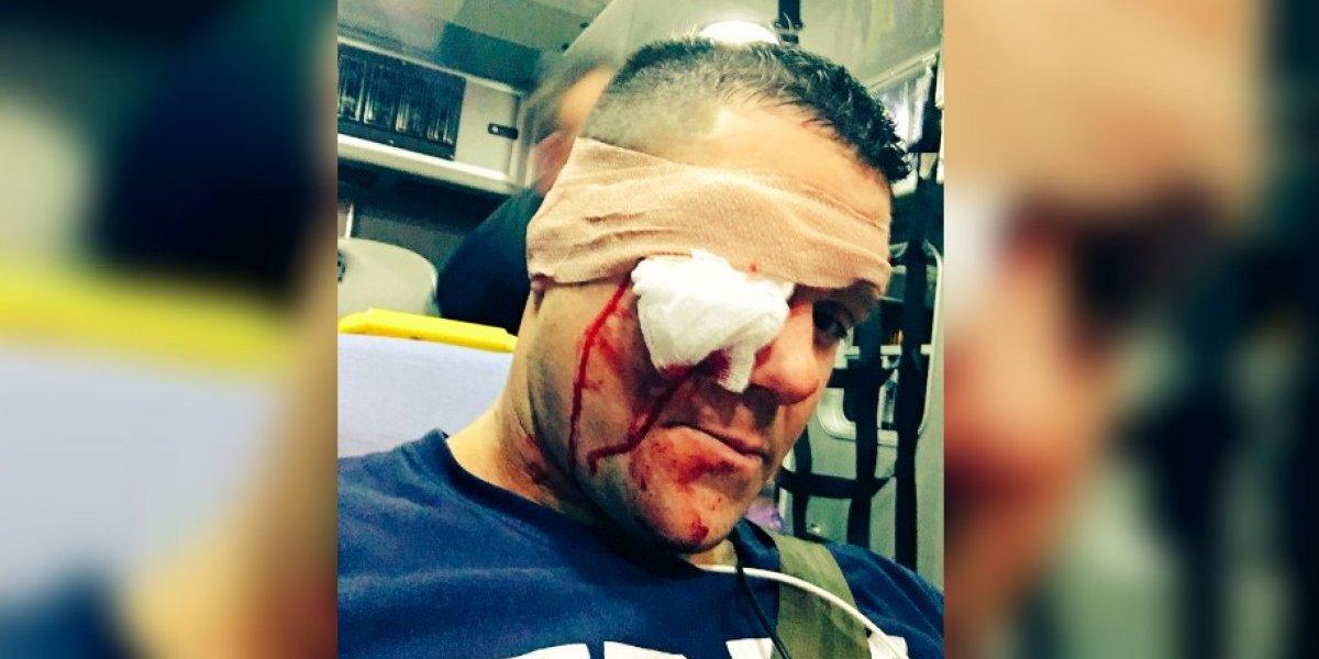 VIDEO: Luchador recibe golpe con un bate y casi pierde el ojo
