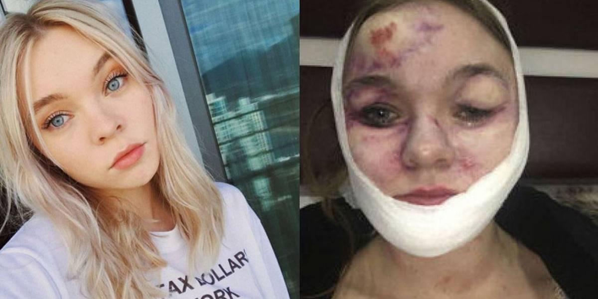 Atriz de Deadpool processa produtora após ter o rosto desfigurado em acidente no set
