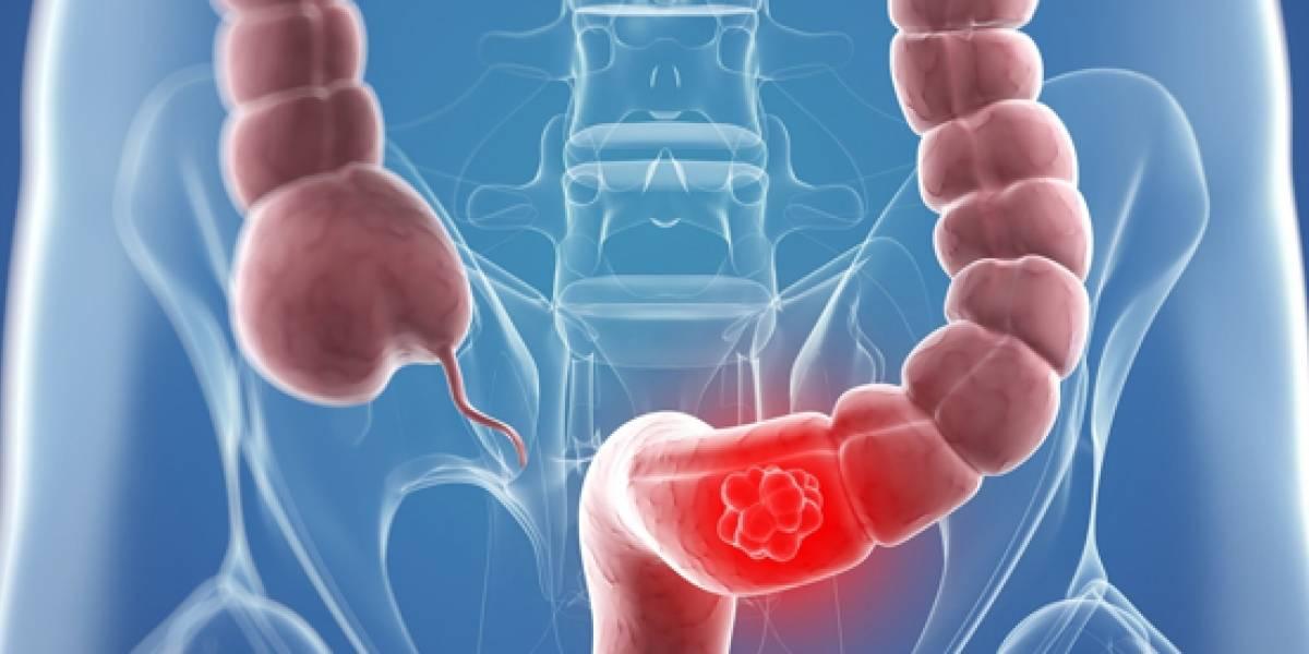 Marzo, mes de la prevención del cáncer de colon y recto