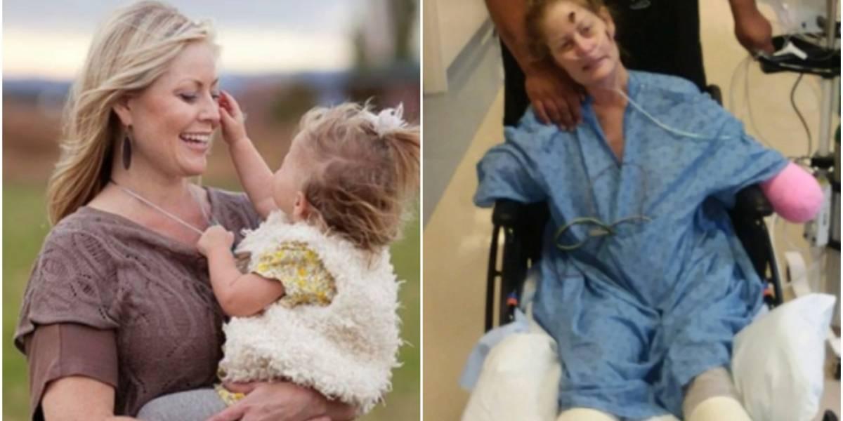El drama de la madre de 6 hijos que contrajo un resfrío común, derivó en neumonía y terminó con las cuatro extremidades amputadas