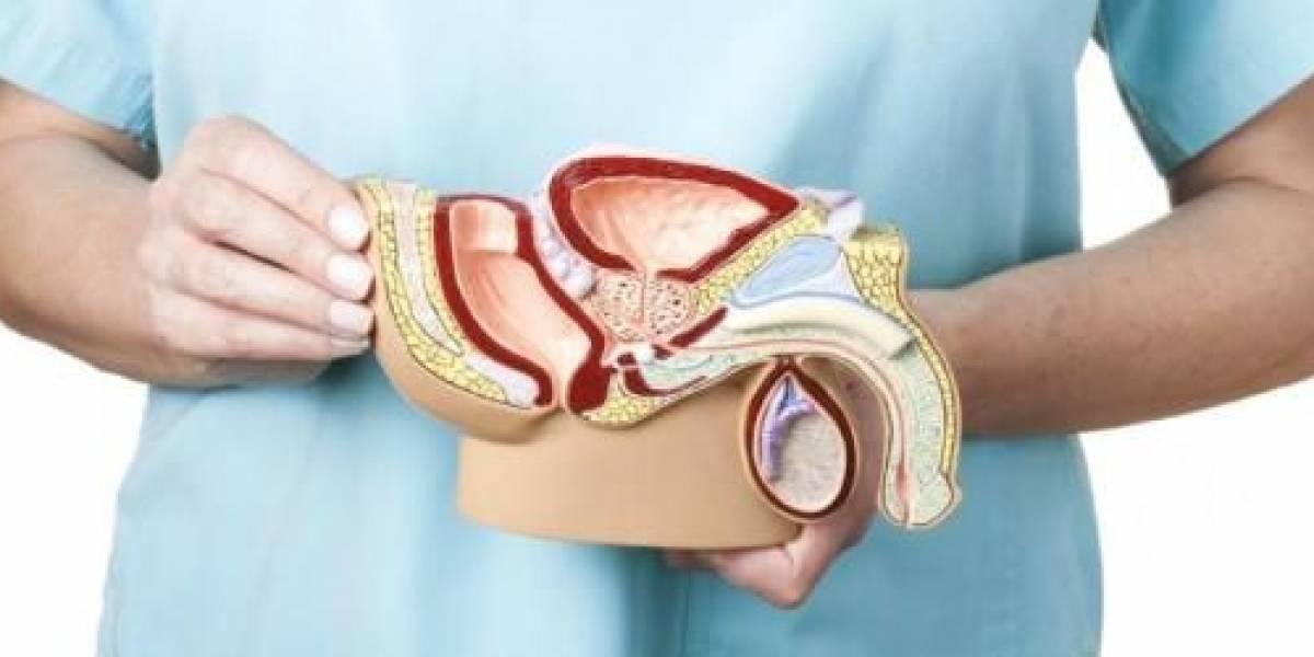 Hiperplacia Prostática Benigna: causas y tratamientos