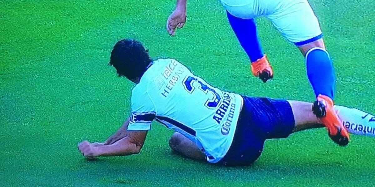 VIDEO: Jugador de Pumas se destroza el brazo