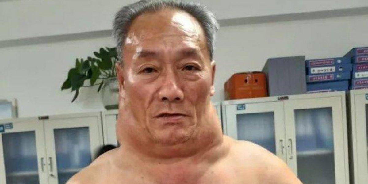 Álcool deixa homem com inchaço impressionante no pescoço