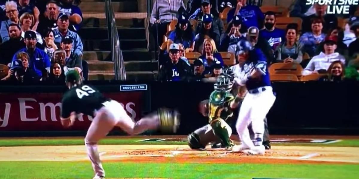 FOTO: Bateador sufre fractura tras un lanzamiento en Grandes Ligas