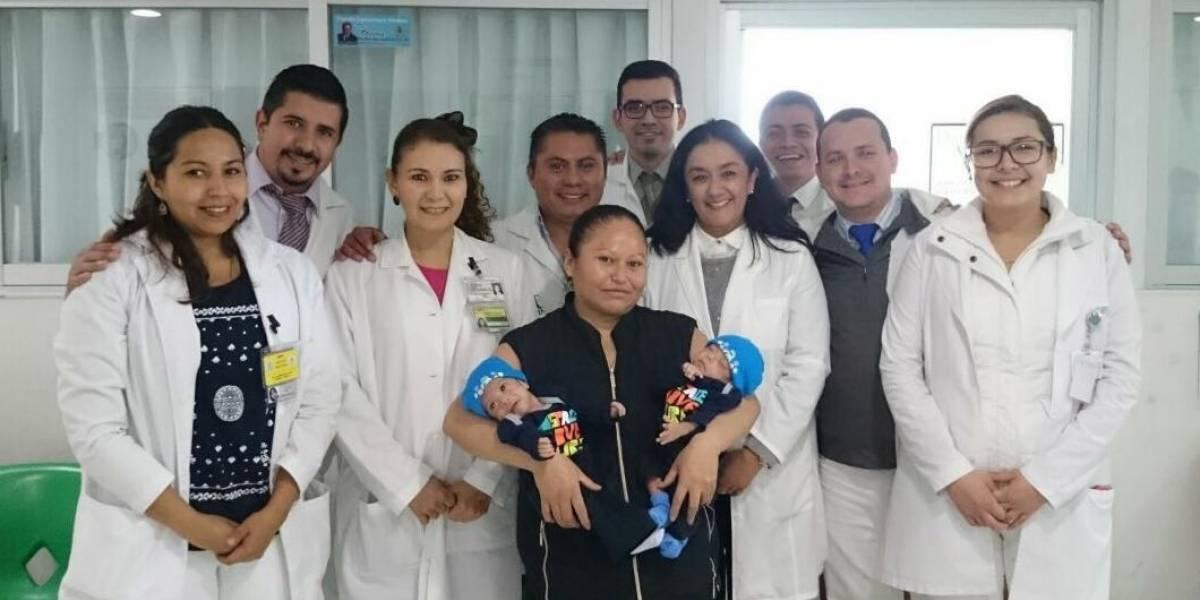 Separan con éxito a siameses unidos por el tórax y abdomen en Guanajuato