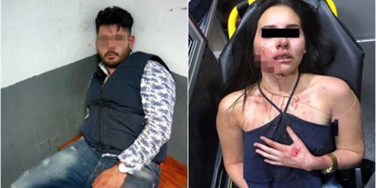 Detienen a sujeto que hirió a su novia en la colonia Roma