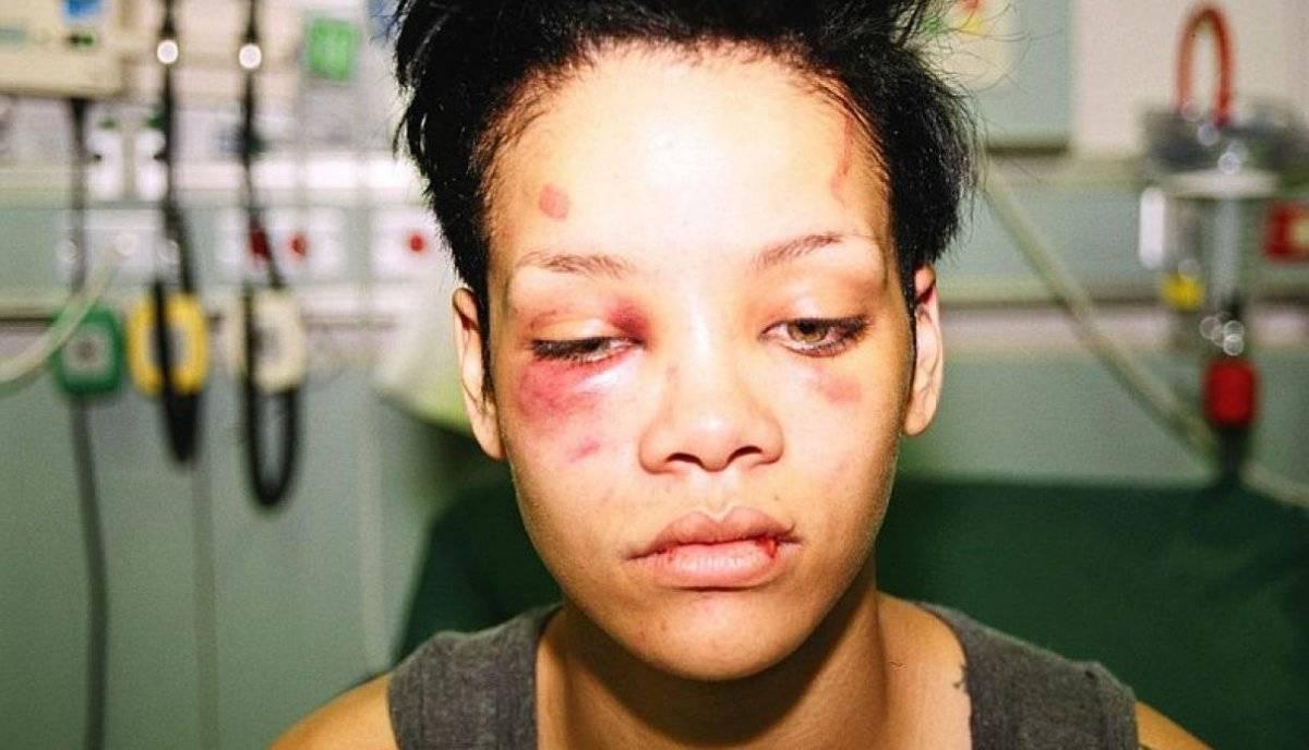 Rihanna golpes