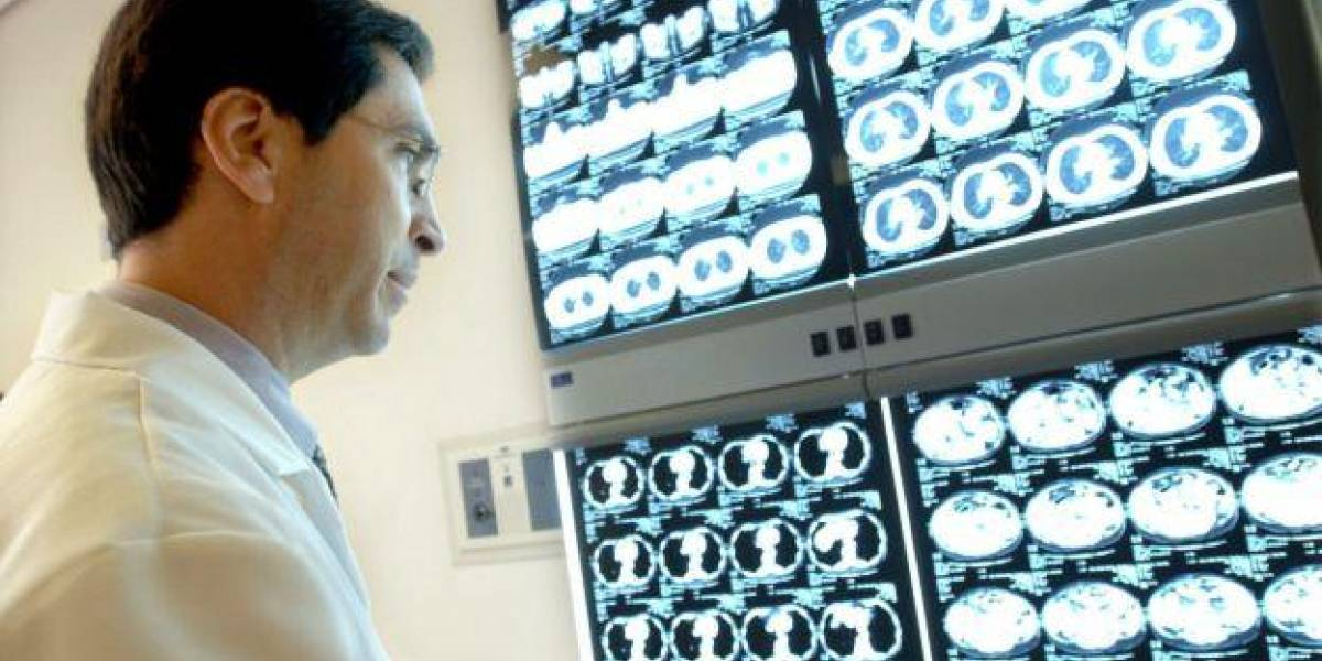 ¿Cómo identificar si tengo cáncer de colon?