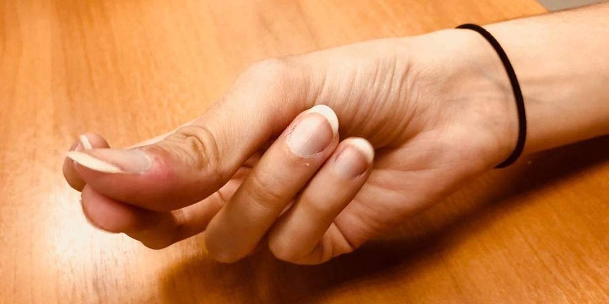 Cientistas desvendam 'mistério' do som do estalar dos dedos