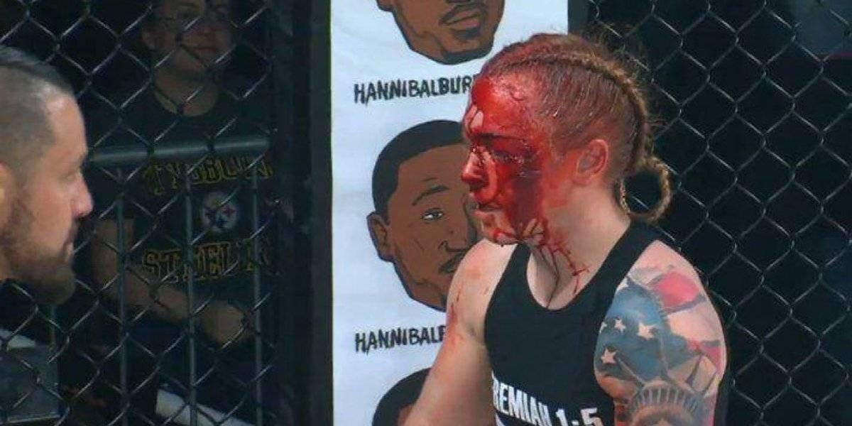 VIDEO. La MMA vio una de las peleas más sangrientas en su historia