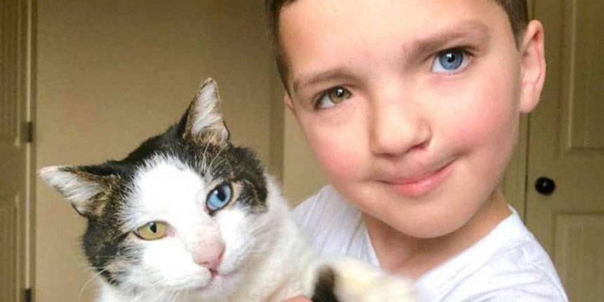 Garoto com condição genética rara ganha gatinho com a mesma aparência e supera bullying