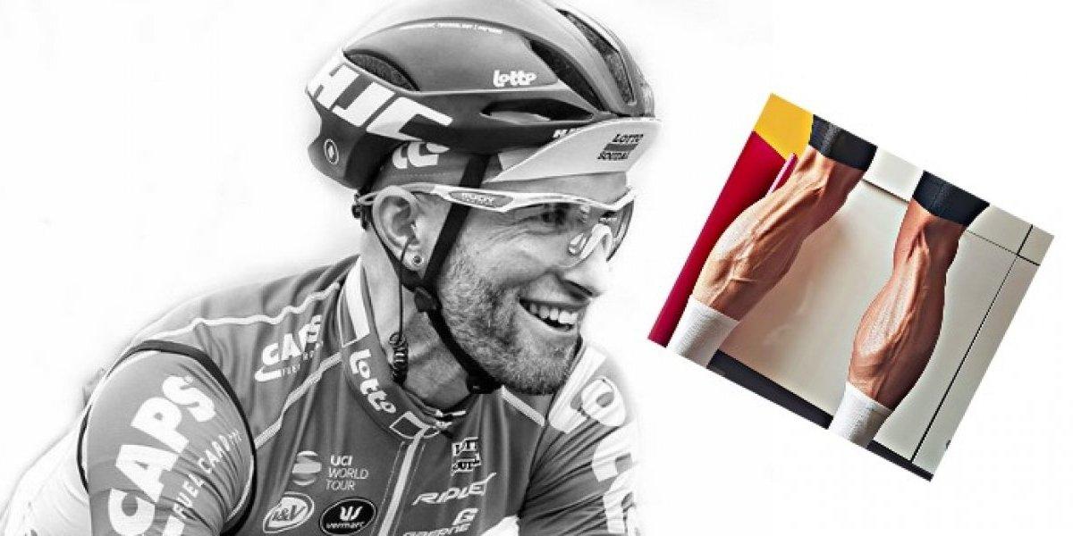 FOTO: Ciclista muestra sus escalofriantes piernas tras semanas de entrenamiento