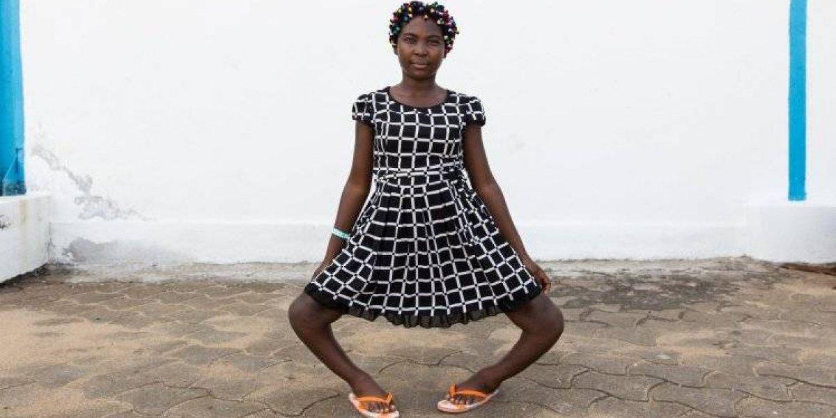 Jovem chamada de 'bruxa' devido deformidade nas pernas consegue cirurgia grátis para mudar de vida