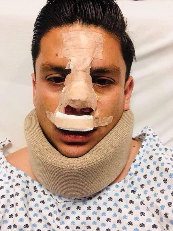 Jugador con lesiones de nariz y cuello