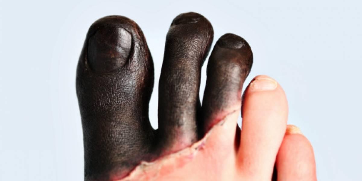 """Se congeló y perdió tres dedos de un pie: ahora un bar los usa como """"hielo"""" de sus tragos"""