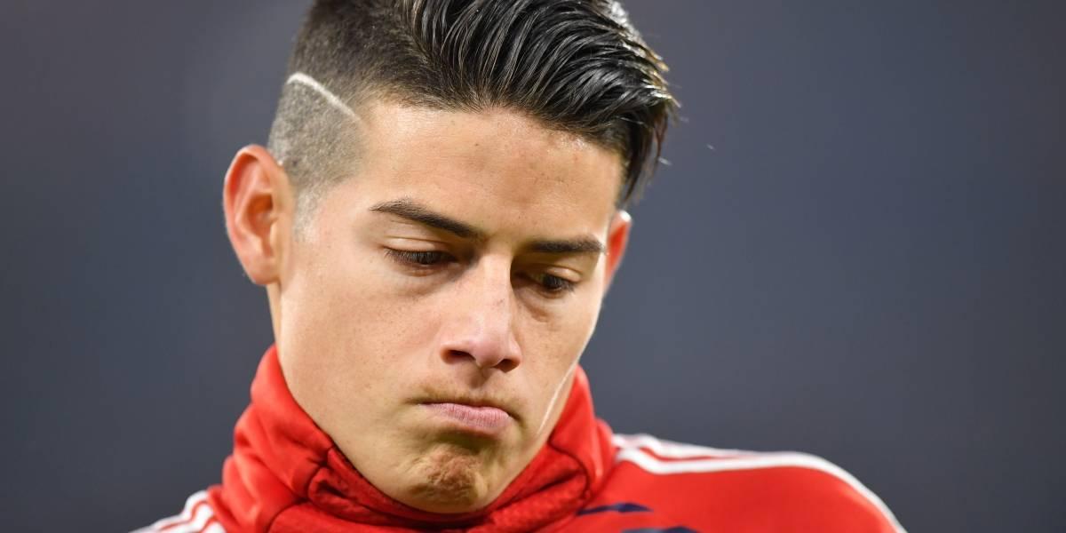 Confirmada lesión de James Rodríguez con Bayern Múnich VS Sevilla