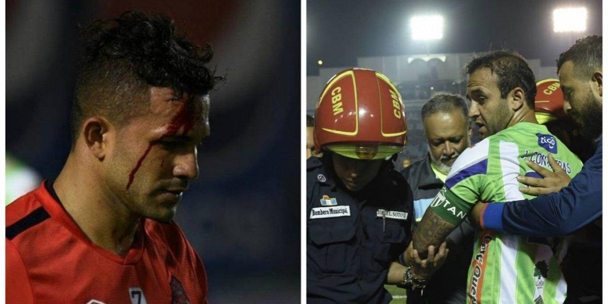 """VIDEO. Momento exacto del golpe que dejó convulsionando a """"el Moyo"""" Contreras"""