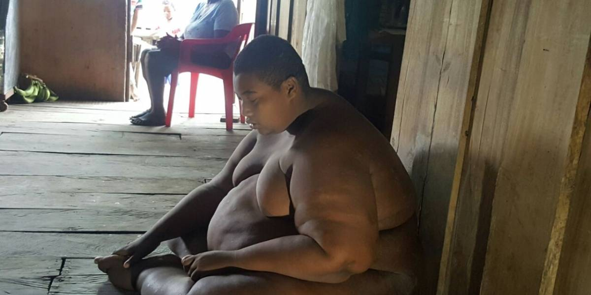 Joven con obesidad mórbida regresó a Nariño tras corto tratamiento en Cali