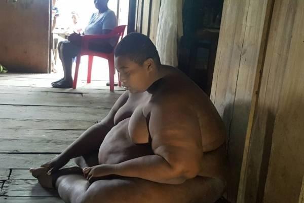 hombre más obeso de Colombia