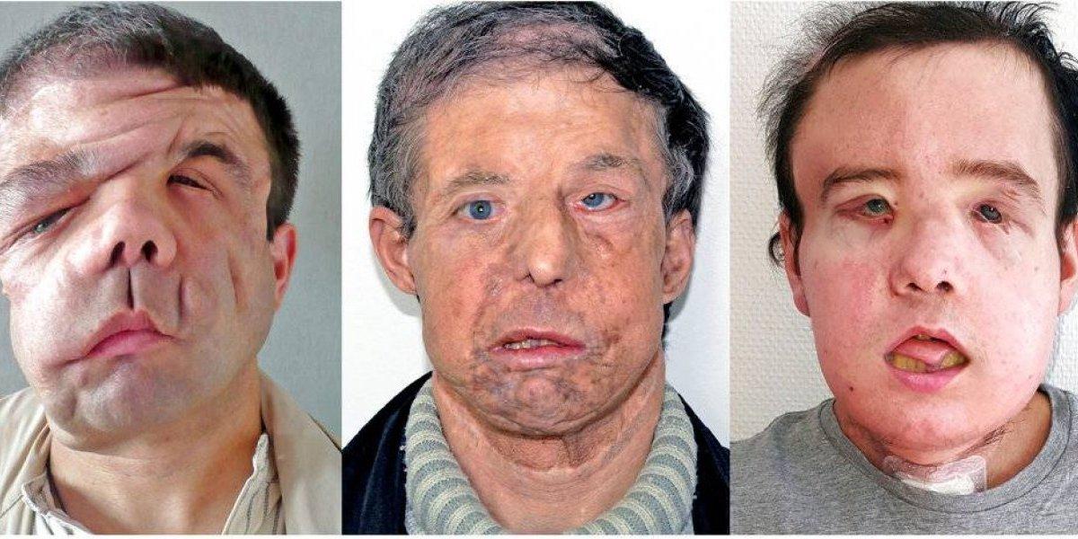 Hombre recibe segundo trasplante de cara