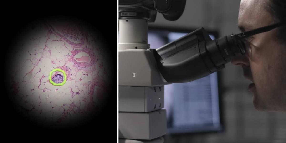 Video: Google presenta impresionante microscopio capaz de detectar el cáncer