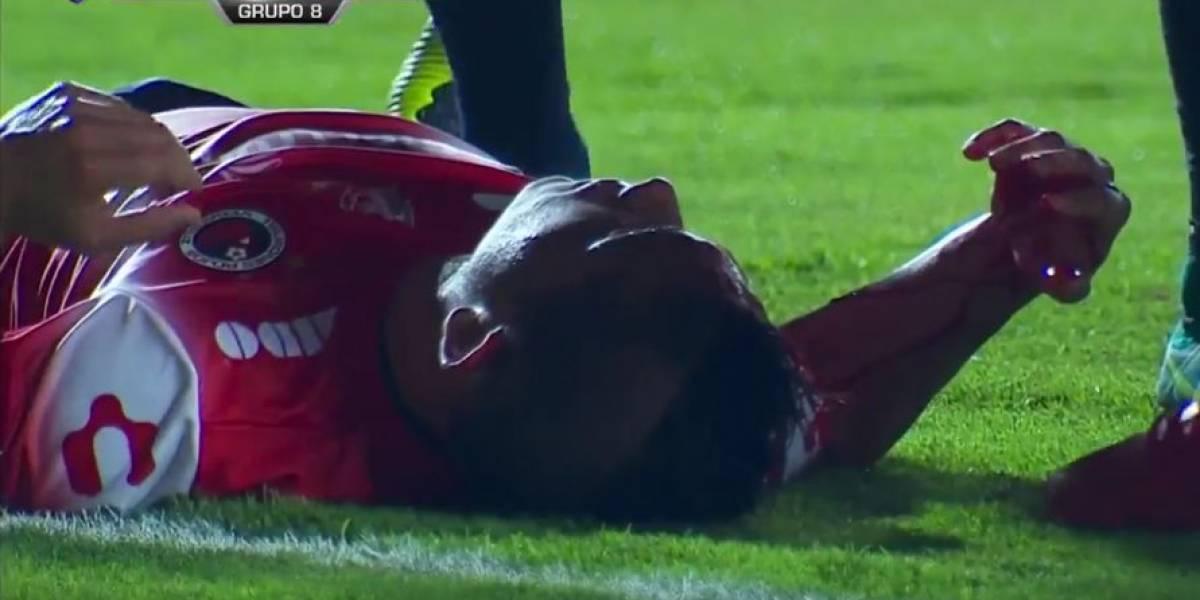 Terminó sangrando y mareado: El fuerte choque de cabeza de Felipe Flores con un rival del Toluca