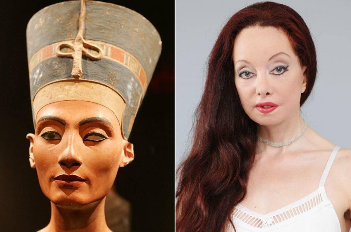 Nileen Namita cirugia Nefertiti