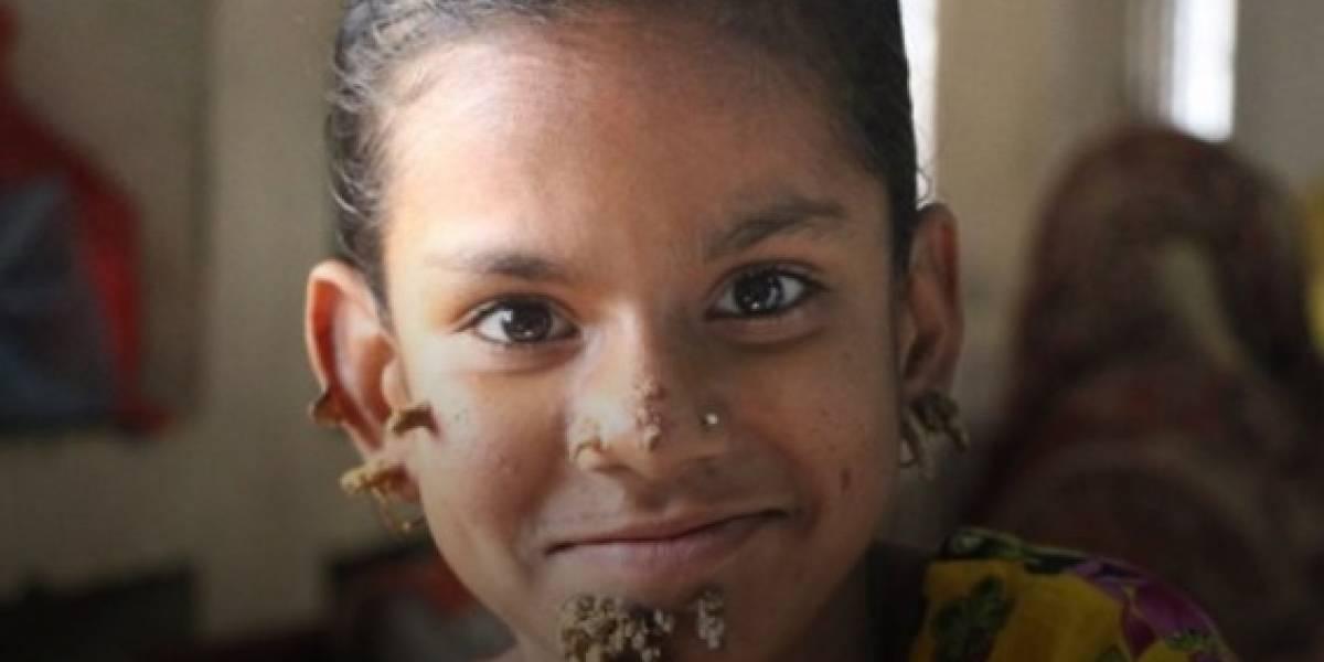 """Niña de 10 años es diagnosticada como la primera """"mujer árbol"""" en Bangladesh"""
