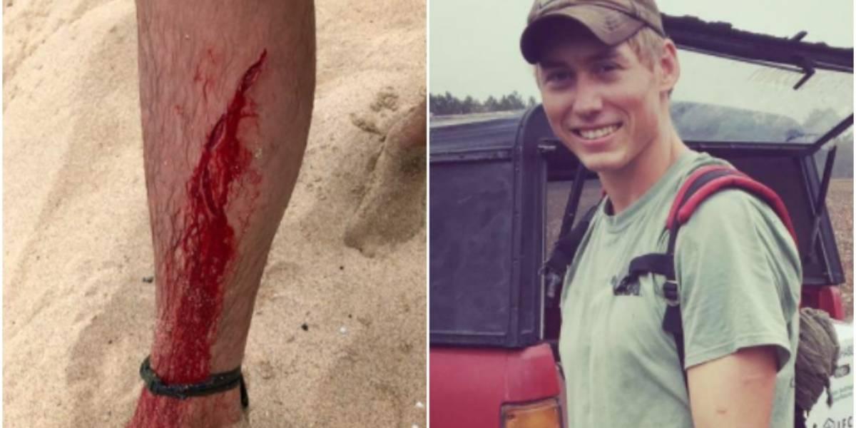 ¿Mala o buena suerte? La increíble historia del joven que en cuatro años se salvó del ataque de un tiburón, un oso negro y una serpiente de cascabel