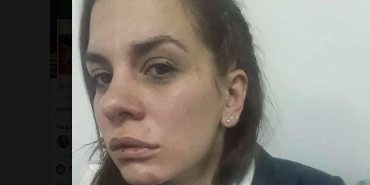 Mujer denunció que fue golpeada brutalmente por su pareja en Bogotá
