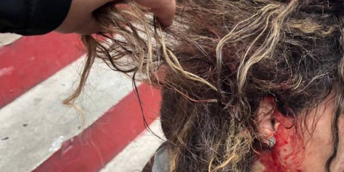 Publican imagen de agresión contra manifestante durante arresto en Río Piedras