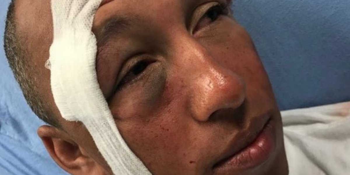 Historia de agente herido en protesta se hace viral