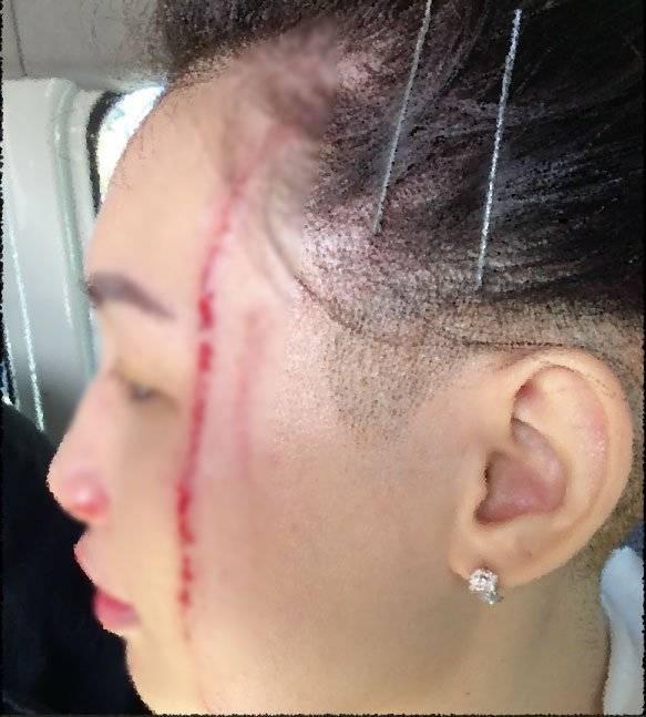 Captura de pantalla heridas por ataque de canguros