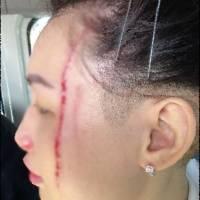 heridas por ataque de canguros