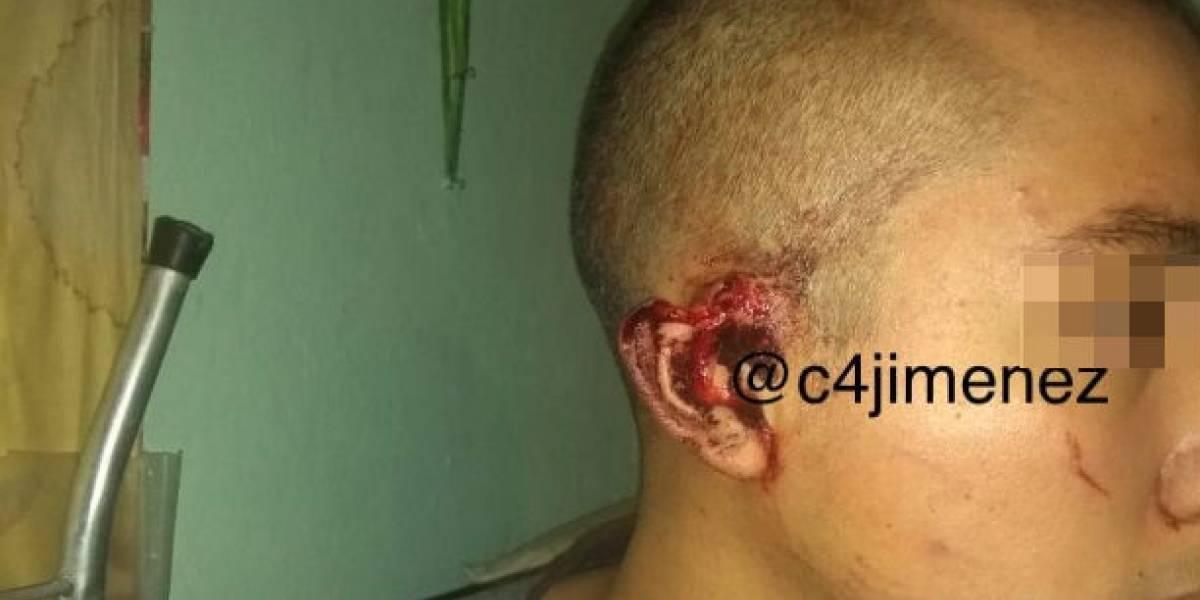Pitbull ataca a su dueño en Coyoacán; familiares matan al perro