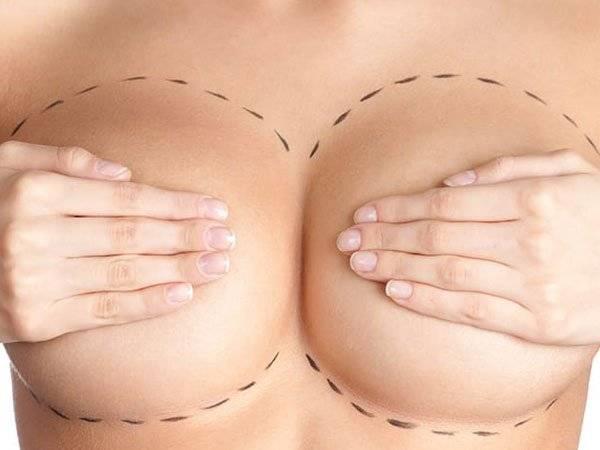 Cirugías Estéticas, Mujeres, Riesgos,