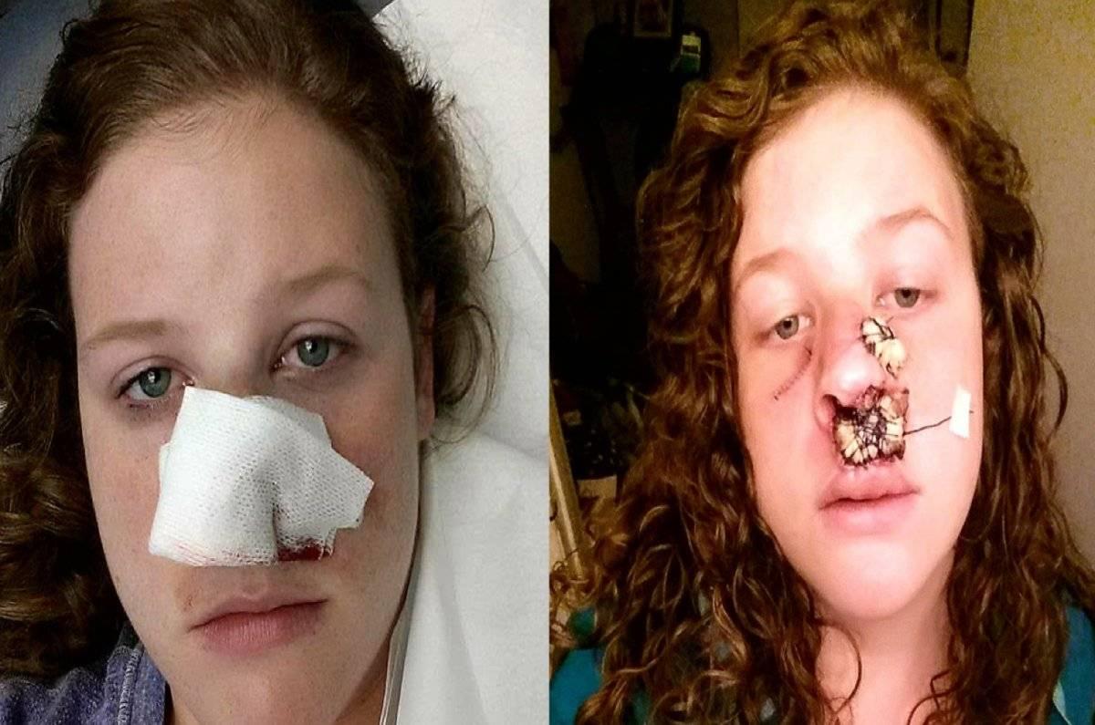 Marisha Dotson cáncer operación