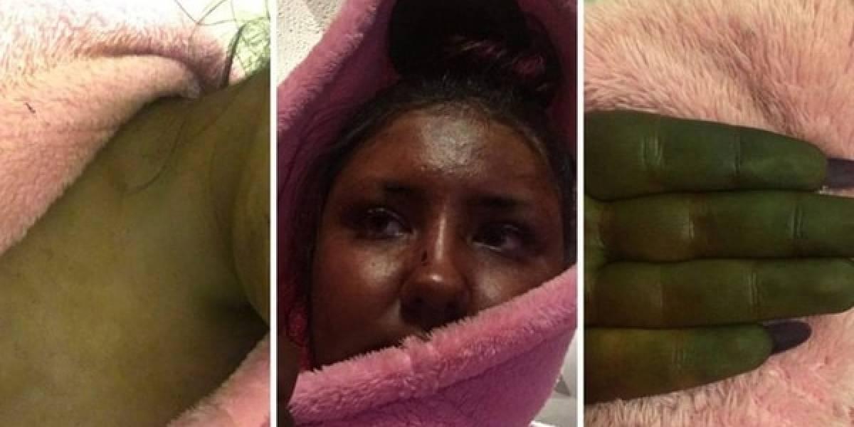 Mujer usa autobronceador y quedó verde como Fiona de Shrek